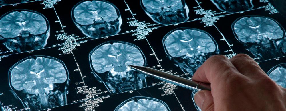 Пленка томографическая медицинская